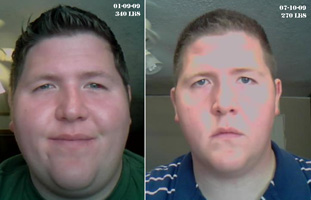 massive weight loss results houston